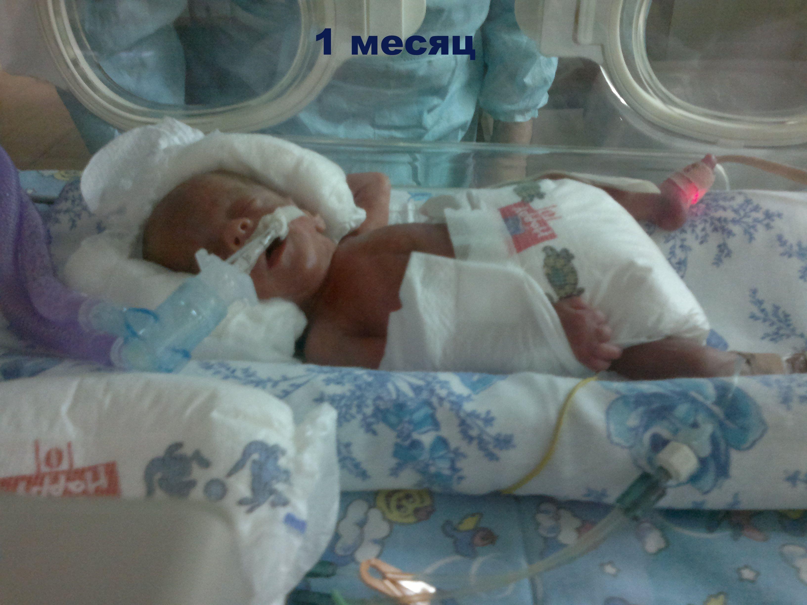 Фото недоношенных детей в реанимации
